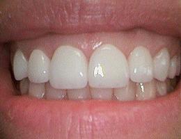 Dr. Stachowicz | Dentist Lebanon PA Dentist
